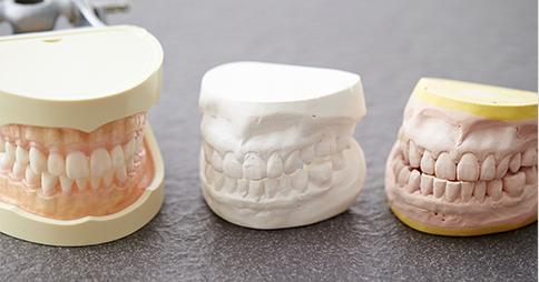 歯型の型取りと噛み合わせの記録