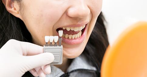 入れ歯に使用する人工の歯の選択