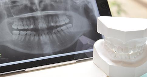 歯型の型取