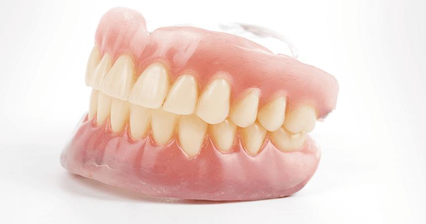 入れ歯の完成(装置の取り付け)